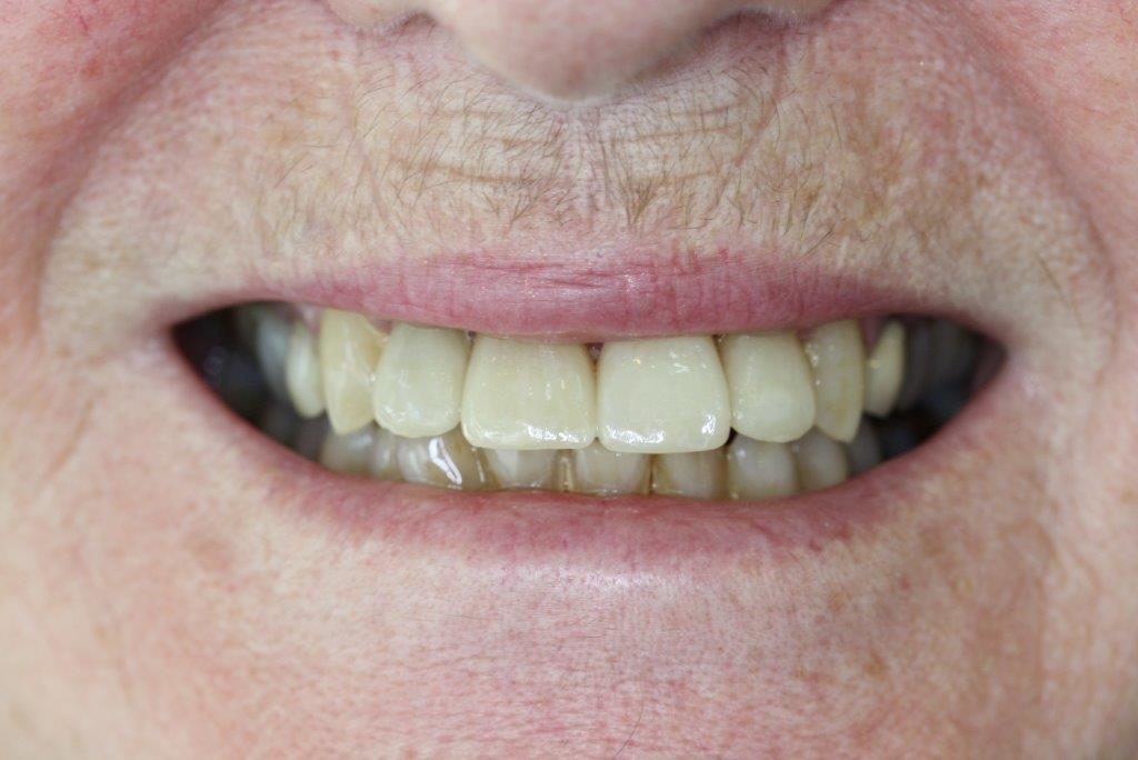 after-implant-and-crowns